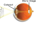 Eye Exams and Discount Contact Lenses | EssexEye